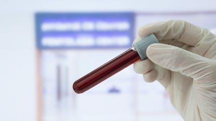 Cancer: gare aux tests «récréatifs» source d'erreurs