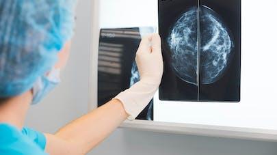 Comment les cancers du sein agressifs se propagent