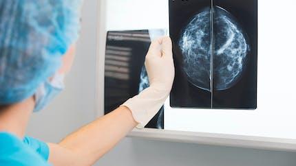 Cancers du sein agressifs : on en sait plus sur leur mécanisme d'action