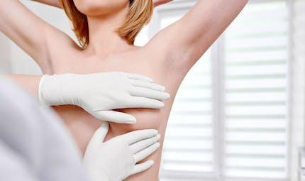 Cancer du sein: certains polluants organiques persistants pourraient augmenter son agressivité