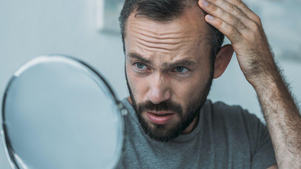 Chute de cheveux : travailler trop longtemps pourrait rendre chauve  Istock-1040532764