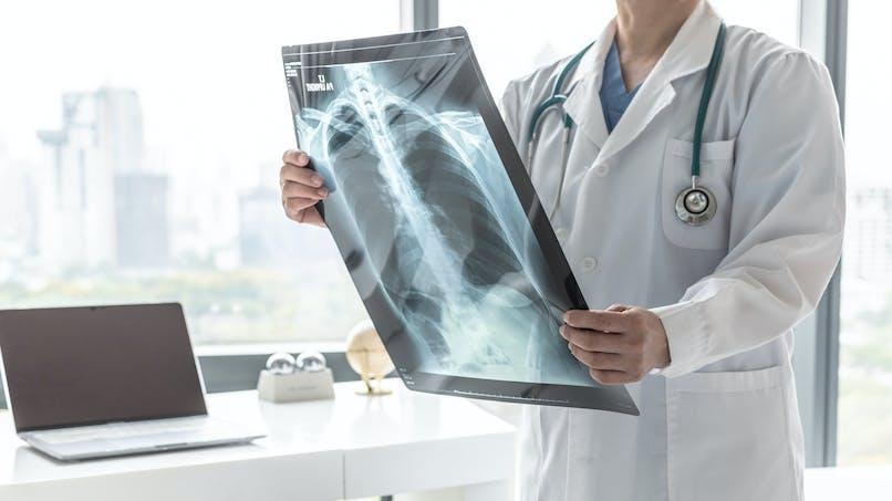 Les différents types de cancer du poumon