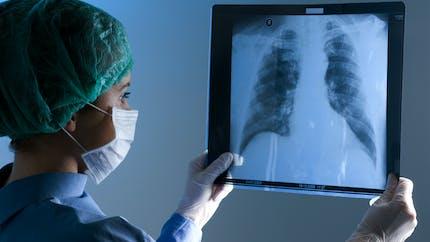 Cancer du poumon: les différents stades de la maladie