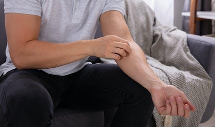 L'eczéma atopique lié à l'augmentation du risque de fracture chez l'adulte