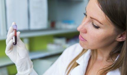 Une prise de sang pour dépister un cancer? La piste de chercheurs lyonnais