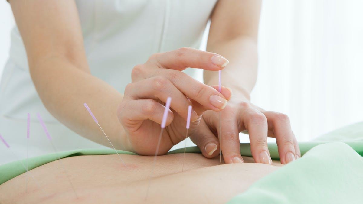 Cancer : l'acupuncture pour réduire la sécheresse buccale due aux traitements