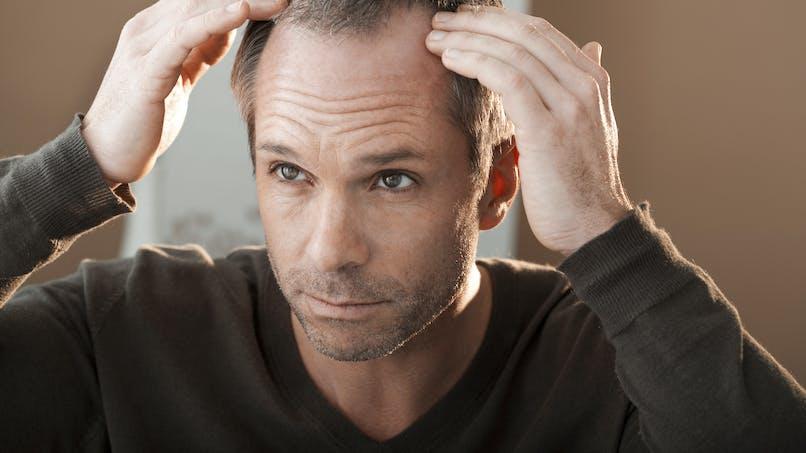 Chute de cheveux : nouvelle mise en garde contre les effets indésirables du finastéride