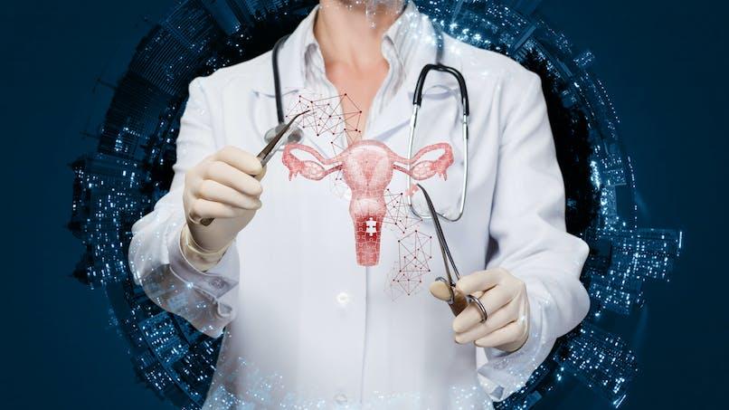 Hystérectomie : trop d'ablations d'utérus en France selon des radiologues