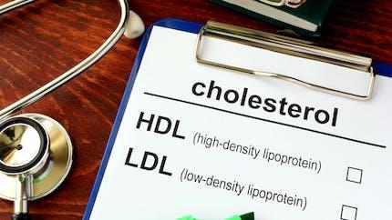 Est-ce que j'ai trop de cholestérol dans le sang?