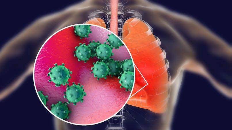 Coronavirus : voici à quoi ressemblent les poumons d'un malade