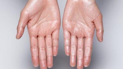 Transpiration excessive : du Botox à haute pression pour la combattre