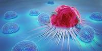 Cancer: comment détecter et traiter les métastases?