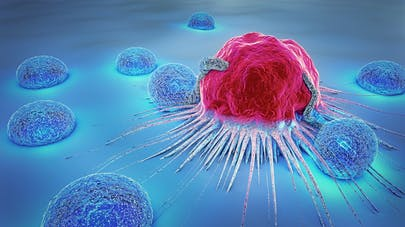 Cancer metastases: how to detect and treat them ...