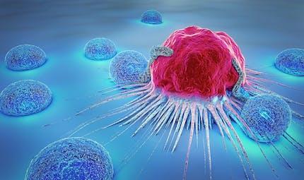Comment détecter et traiter les métastases d'un cancer?