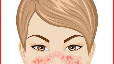 Quels sont les traitements du lupus?