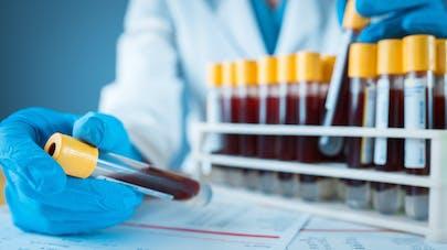 Tests de dépistage : quels seront les critères de fiabilité?
