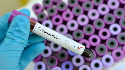 Coronavirus: une étude pour connaître la part de la population infectée en France
