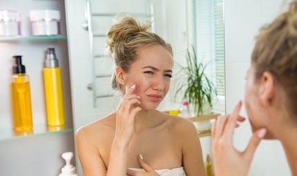 Le traitement contre l'acné de l'adolescent