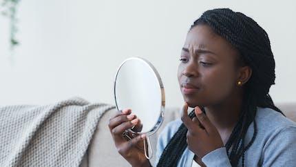 L'acné chez l'adulte, un problème fréquent