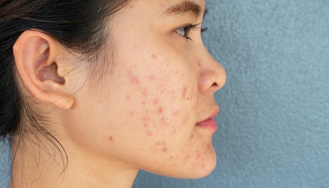 Cicatrices d'acné: comment retrouver une belle peau