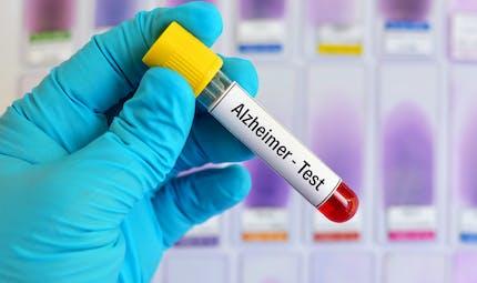 Maladie d'Alzheimer : des résultats prometteurs pour un test sanguin de dépistage précoce
