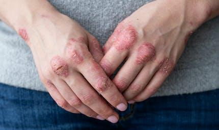 Psoriasis mains-pieds: les femmes fumeuses sont plus à risque