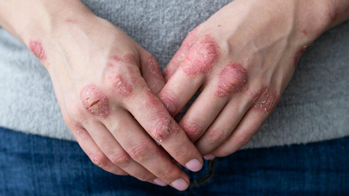 Psoriasis mains-pieds : les femmes fumeuses ont plus de risque