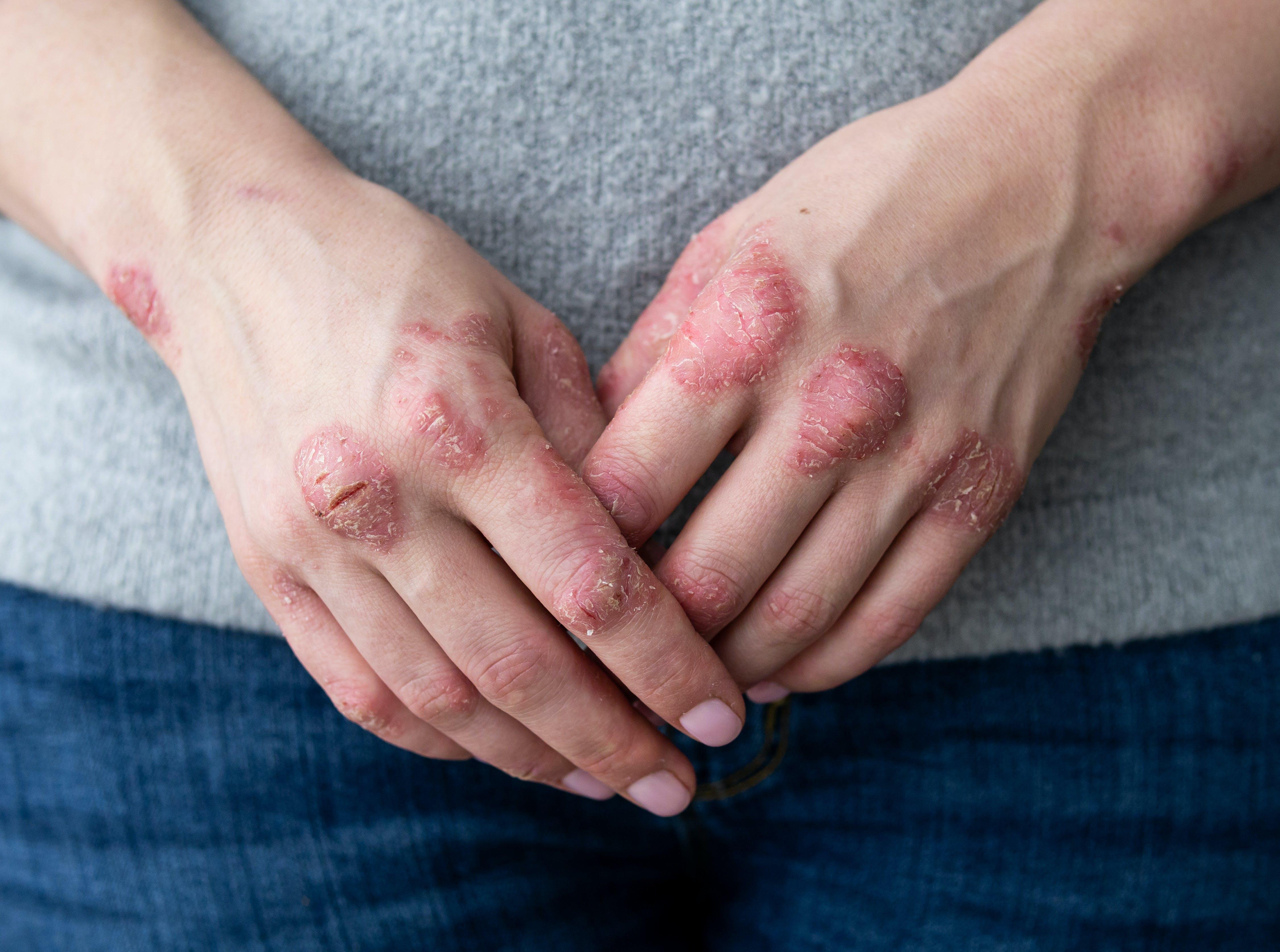 maladie peau pied