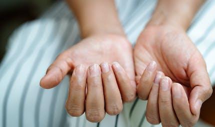 Psoriasis de l'ongle: attention au risque de rhumatisme psoriasique