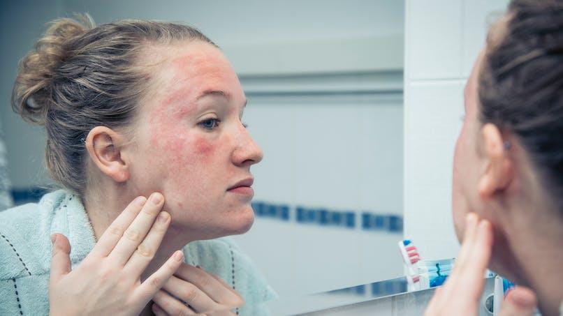 Psoriasis du visage: il est souvent lié à un excès de sébum