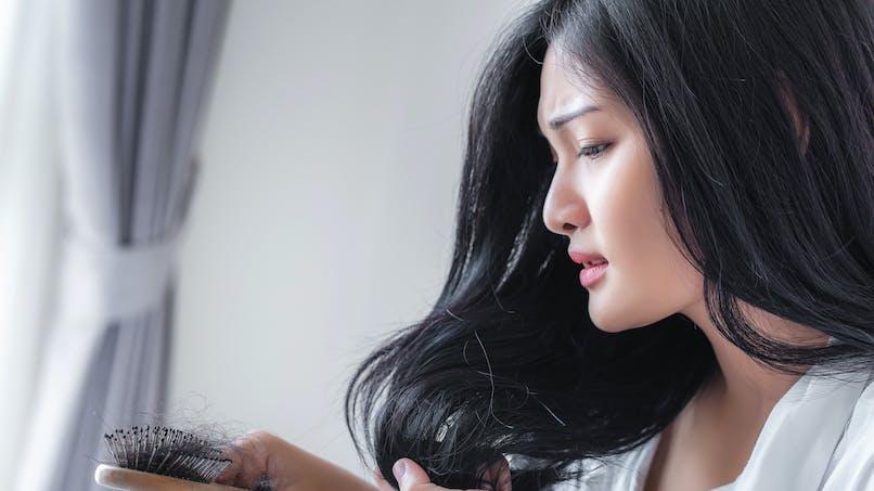 Cheveux cassants, pellicules, psoriasis… quelles solutions?
