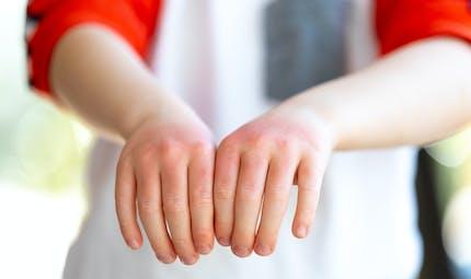 Des probiotiques cutanés permettraient d'améliorer l'eczéma chez les enfants