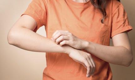 Dermatite atopique: deux millions d'adultes sont concernés