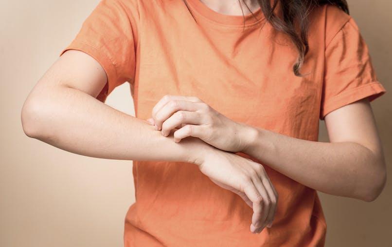 dermatite atopique : elle concerne plus de 2 millions d'adultes