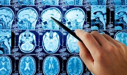 """Covid-19 : des chercheurs australiens craignent """"une vague silencieuse"""" de troubles neurologiques"""