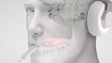 Acouphènes : un outil de stimulation non-invasif donne de bons résultats