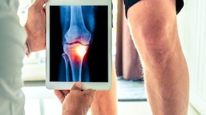 Arthrose : champ magnétique et hydrogels pour re-fabriquer du cartilage