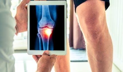 Arthrose : champ magnétique et hydrogels pourraient aider à fabriquer du cartilage