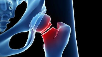 Fracture du col du fémur: elle peut bouleverser une vie