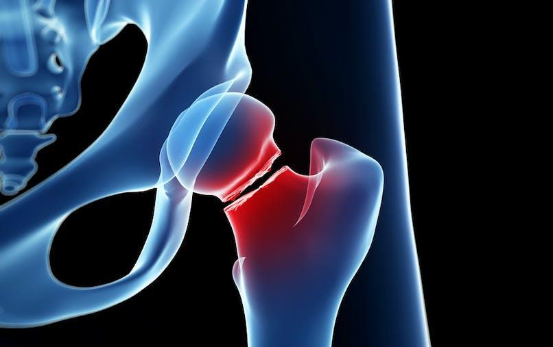 Fracture du col du fémur : elle peut bouleverser une vie