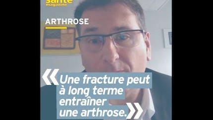 Pourquoi le risque d'arthrose augmente après une fracture ? Réponse en vidéo