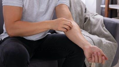dermatite atopique fiche maladie
