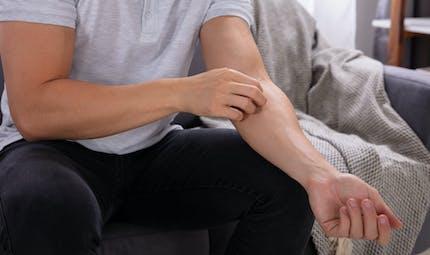 Dermatite atopique : comment la reconnaître et la traiter ?
