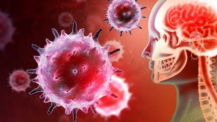 Encéphalite : ce qu'il faut savoir sur cette inflammation de l'encéphale