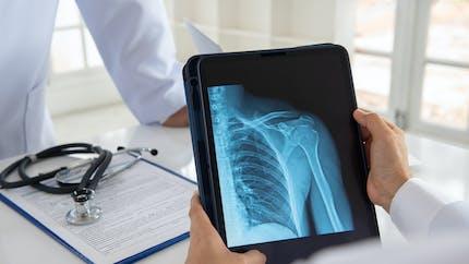 Comment soigner une fracture de l'épaule ?