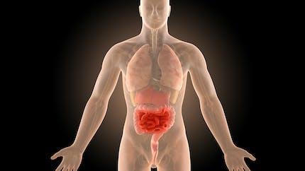 Maladie de Crohn : tout savoir sur cette MICI
