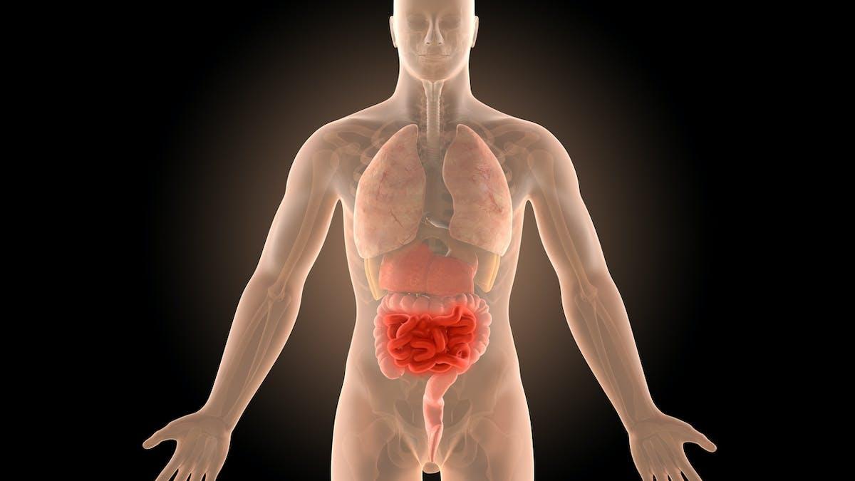 Tout savoir sur la maladie de Crohn