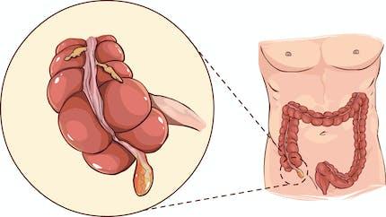 Appendicite : tout savoir sur cette inflammation de l'appendice