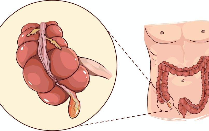 Tout savoir sur l'appendicite