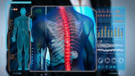 Dorsalgie : tout savoir sur le mal de dos